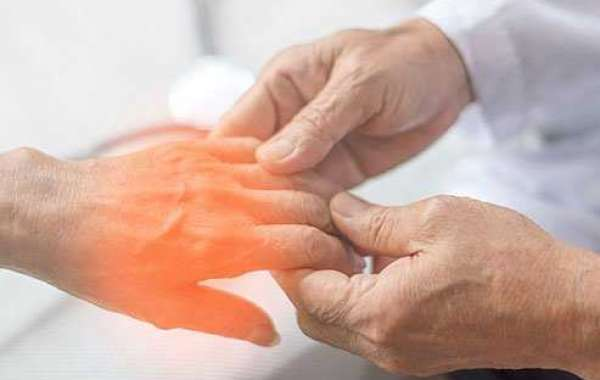 5 TYPES OF NEUROPATHY AND TREATMENT WAYS